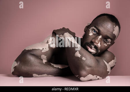 Close up fashion portrait of a male afro or african model with white pigmentation. Concept of no racism. Conceptual image of young man at pink studio background - Stock Photo
