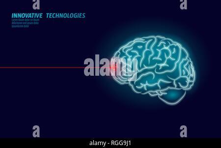 Laser surgeon brain treatment low poly 3D render. Drug nootropic human ability smart mental health. Medicine cognitive rehabilitation in Alzheimer - Stock Photo