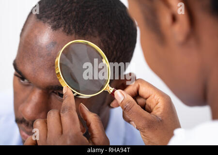 Close-up Of Man's Hair Seen Through Transparent Magnifying Glass - Stock Photo