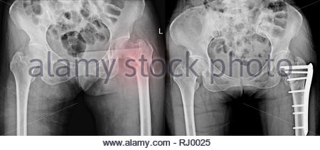 Post-accident Left Hip Fracture with Surgical Fixation ... X Ray Femur 2 Views
