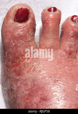 Acute Neurodermatitis respectively atopic eczema - Stock Photo