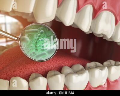 Bacterias and viruses around tooth. Dental hygiene medical concept. 3d illustration. - Stock Photo