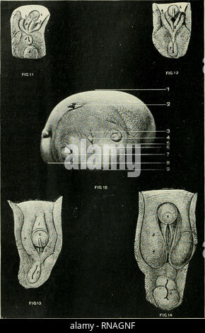 . The anatomical record. Anatomy; Anatomy. Figs. 11-15 (Fig.s. 11, 12, IS, uiid 14. /, phallus; 2, glans elitoridis; 3, ostium iirogenital; 4, labia majora; 5, anus; 6, coccygeal eminence; 7, labia minora. Fig. 15 1, ventral surface of fetus amorphus; 2, umbilical cord; S, body of the I)hallus; 4, glans of elitoridis; 5, left labia majora; 6, urogenital sinus; 7, right lower limb bud; 8. dorsal aspect of right upper limb; 9, imperforate anus. 218. Please note that these images are extracted from scanned page images that may have been digitally enhanced for readability - coloration and appearan - Stock Photo