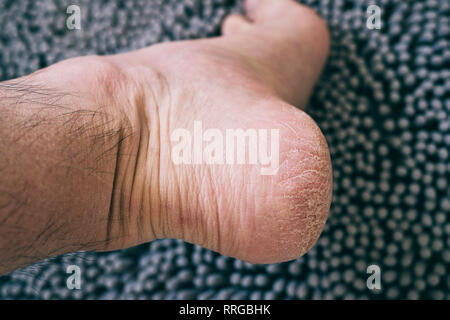 Dry and cracked skin on the heel of a Caucasian man - Stock Photo