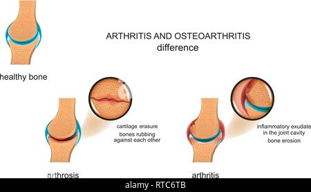 vector illustration of the difference between arthrosis and arthritis - Stock Photo