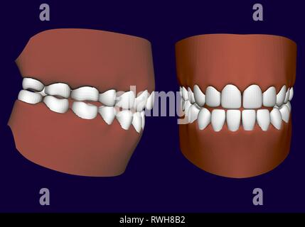 Human jaw with teeth. Side and front view. 3D. Isolated jaw on a white background. Healthy human teeth. Prosthetic teeth. Vector illustration - Stock Photo