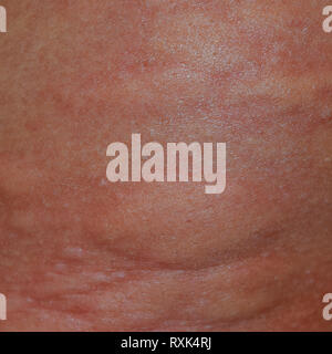 Allergy skin back and sides. Allergic reactions on the skin in the form of swelling and redness. - Stock Photo