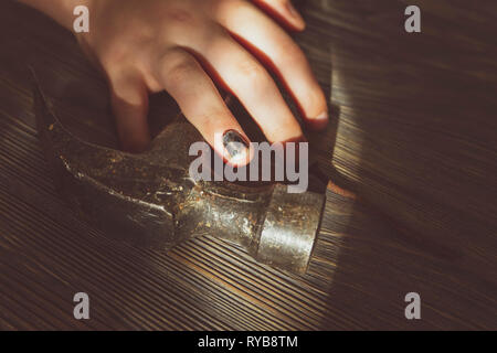 Injured hand with blackened and bruised thumbnail from bashing it resting over a hammer in a close up view in a conceptual image of DIY injuries - Stock Photo
