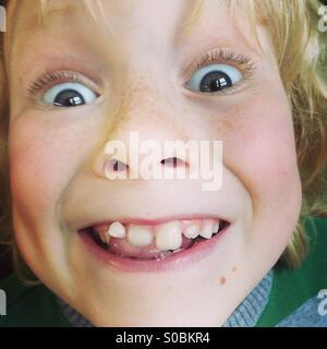 Wobbly Tooth - Stock Photo