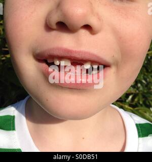 Boy with front tooth missing - Stock Photo