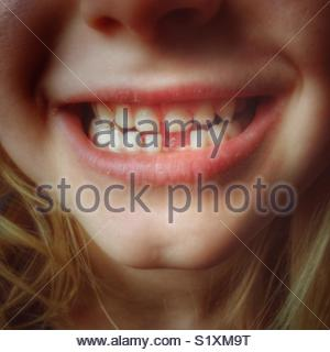 Child with missing front tooth closeup - Stock Photo