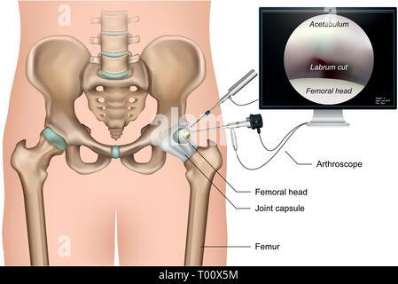 Hip arthroscopy 3d medical vector illustration on white background - Stock Photo