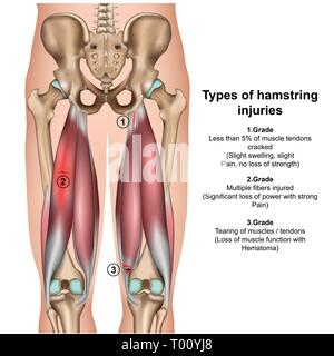types of hamstring injurys 3d medical vector illustration on white background - Stock Photo