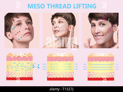 Meso thread Lift. Young female with clean fresh skin. Beautiful woman. face and neck. - Stock Photo