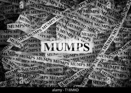 Mumps. Torn pieces of paper with the words Mumps. Concept image. Black and White. Close up. - Stock Photo