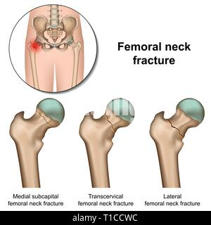 Femoral neck fractures medical vector illustration on white background - Stock Photo