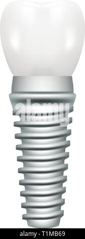 Dental Implant Model Closeup Cut Away Side View Educative Medical Poster Isolated On A White Background. Vector Illustration. - Stock Photo