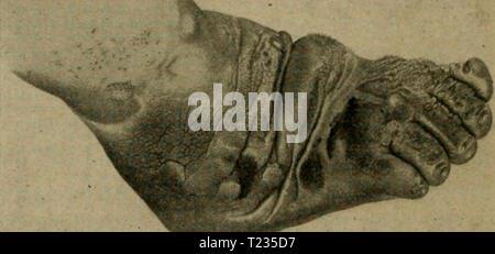Archive image from page 143 of Die vergleichende Pathologie der Haut - Stock Photo