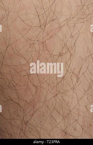 Hairy white skin closeup texture. Detailed human white skin - Stock Photo
