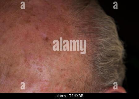 Carcinoma melanoma skin damage on elderly mans forehead from sun exposure. Close up of precancerous skin. - Stock Photo