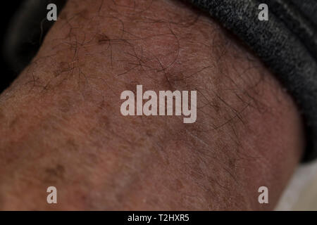 Sun spots and liver spots on the skin of an older mans hands. - Stock Photo