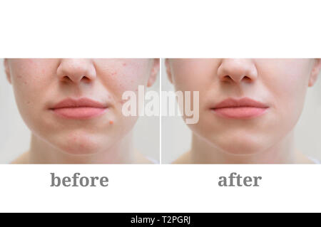 Acne on the girl's face. Treatment of rosacea. Before and after. - Stock Photo