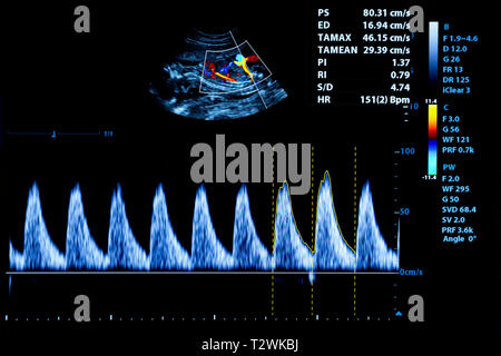 Colourful image of modern ultrasound monitor. Ultrasonography machine. High technology medical and healthcare equipment. Ultrasound imaging or sonogra - Stock Photo
