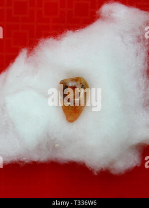 Wisdom tooth with cavity extracted from the mouth of an adult human female - Stock Photo