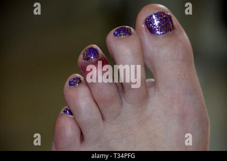 dislocated toe bruising after sport mistake, black and blue bruise on the left foot of the middle toe of a female after a painful accident - Stock Photo