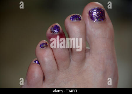 close-up view of dislocated toe bruising after sport mistake, black and blue bruise on the left foot of the middle toe of a female after a painful acc - Stock Photo