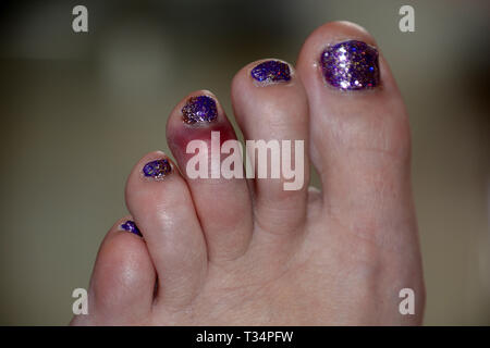 black and blue bruise on the left foot of the middle toe of a female after a painful accident, unsightly bruise of glitter nail polish toe after sport - Stock Photo