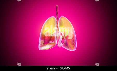 3D illustration of human lungs inflamed and infected by a disease like Pneumonia or Tuberculosis. - Stock Photo