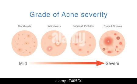 medical diagram about grade of acne severity  - stock photo