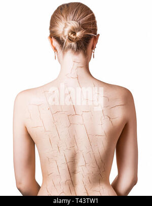 Woman with cracked on back as cosmetic and dehydration effect concept. - Stock Photo