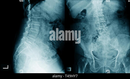 lumbar spondylosis x-ray image AP and lateral view - Stock Photo