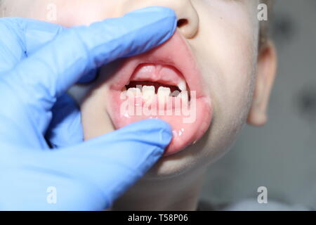 A dentist examines the baby teeth in the boy. The loss of milk teeth. The boy has no upper central teeth. The loss of milk teeth in children. - Stock Photo