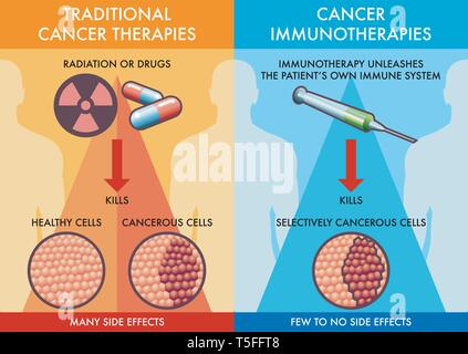 A medical diagram of the comparison between the traditional cancer therapies and the cancer immunotherapies. - Stock Photo
