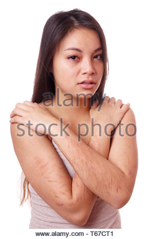 young woman with self-inflicted cuts cries - Stock Photo