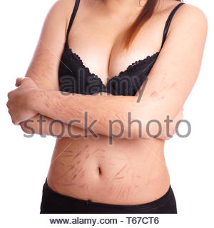 scars from deliberate self-harm - Stock Photo