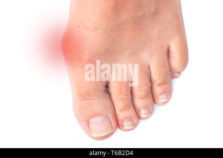 Foot of a woman with painful Hallux Valgus - Stock Photo