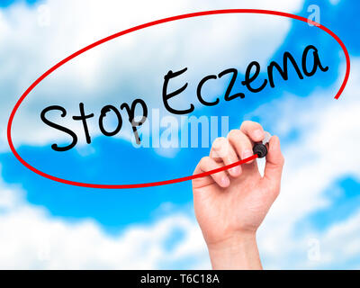 Man Hand writing Stop Eczema with black marker on visual screen - Stock Photo