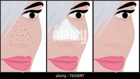 Treatment Blackheads on Nose vector illustration showing skin