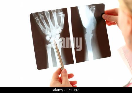 Doctor Female Hand Holding Hand Xray Photography - Stock Photo