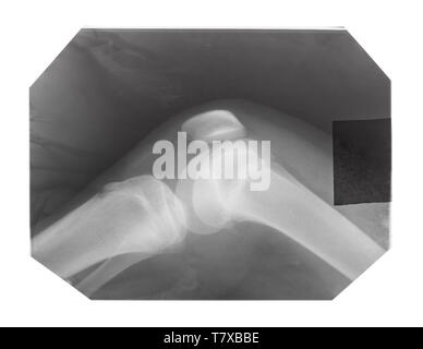 film with X-ray image of human knee-joint with kneecap isolated on white background - Stock Photo