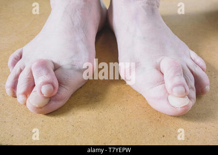 Valgus Deformity of Female Leg Due Hallux Valgus and Weakness of Ligaments. - Stock Photo