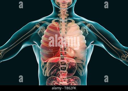 Red hepatisation of lobar pneumonia, conceptual illustration - Stock Photo