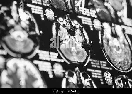 Magnetic resonance image of head. X-ray, MRI, brain, medicine, science - Stock Photo
