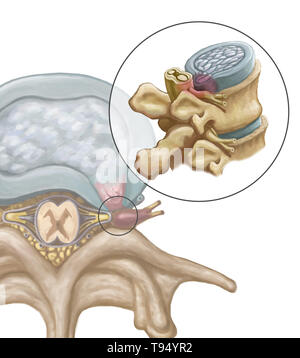 An illustration of the herniation of an intervertebral disk in the lumbar spine. Individuals suffer from a herniated disk when the outer fibrous tissue of the disk, known as the anulus fibrosus, can rupture due to trauma or old age. As a result, the gel-like center of the disk protrudes outward and compresses the nerves in the back, weakening muscles and causing severe local back pain. - Stock Photo
