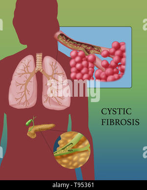 Cystic fibrosis (CF) is a genetic disorder that affects mostly the lungs, but also the pancreas, liver, kidneys, and intestine. Long-term issues include difficulty breathing and coughing up mucus as a result of frequent lung infections. Other signs and symptoms may include sinus infections, poor growth, fatty stool, clubbing of the fingers and toes, and infertility in some males. Different people may have different degrees of symptoms. - Stock Photo