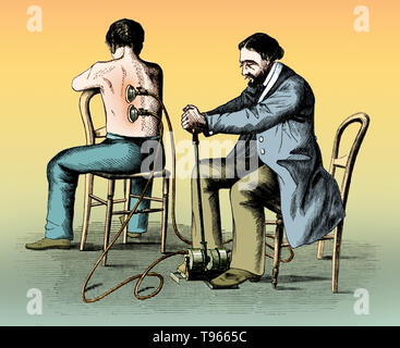 Patient being cupped by physician with a treadle or pneumatic machine. Cupping therapy is an ancient form of therapy in which a local suction is created on the skin; practitioners believe this mobilizes blood flow in order to promote healing. Suction is created using heat (fire) or mechanical devices (hand or electrical pumps). There is reason to believe the practice dates from as early as 3000 BC. The Ebers Papyrus, and one of the oldest medical textbooks in the world, describes the Egyptian use of cupping. Archeologists have found evidence in China of cupping dating back to 1000 BC. In ancie - Stock Photo